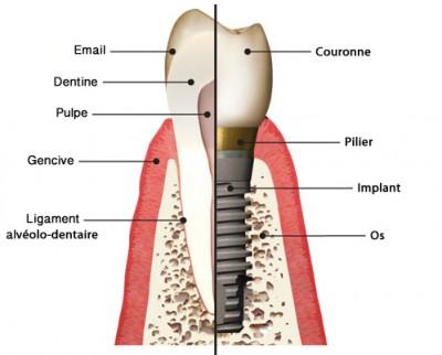 schema-implant-dentaire